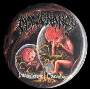 "Intrauterine Cannibalism 1.5"" Pin"